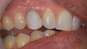 before-after-cosmetic-dentistry-composite-Veneer-closing-gap-bonding-before