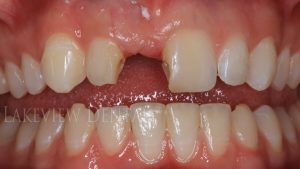 after-cosmetic-dentistry-replacement-bonding-before