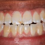 before-after-cosmetic-dentistry-bleach-stain-front-tooth-feature