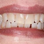 before-after-cosmetic-dentistry-close-gap-front-teeth-feature
