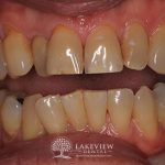 before-after-cosmetic-dentistry-composite-veneer-feature