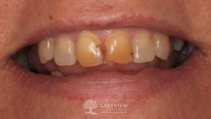 before-after-cosmetic-dentistry-discolored-bonding-feature