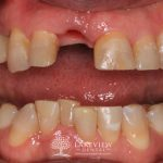 before-after-cosmetic-dentistry-front-tooth-dental-implant-feature