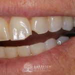 before-after-cosmetic-dentistry-restore-fractured-teeth-feature