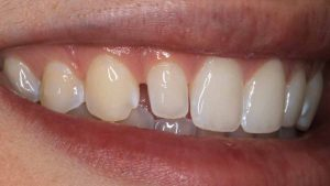 composite-veneer-feature