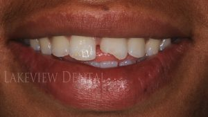before-after-cosmetic-dentistry-broken-tooth-bonding1-before
