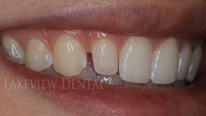 before-after-cosmetic-dentistry-closing-gap-bonding-before