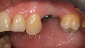 before-after-cosmetic-dentistry-implant-crown-before