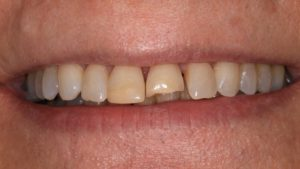 before-after-cosmetic-dentistry-broken-tooth-bonding-before