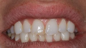 before-after-cosmetic-dentistry-chipped-discolored-bonding-before